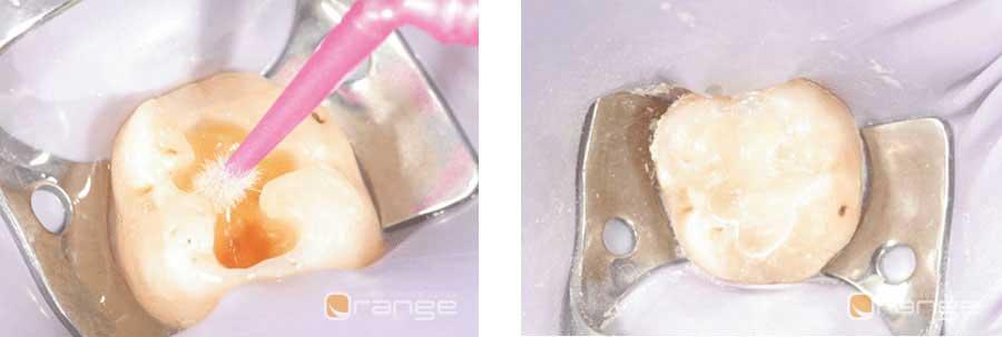 conservazione del dente